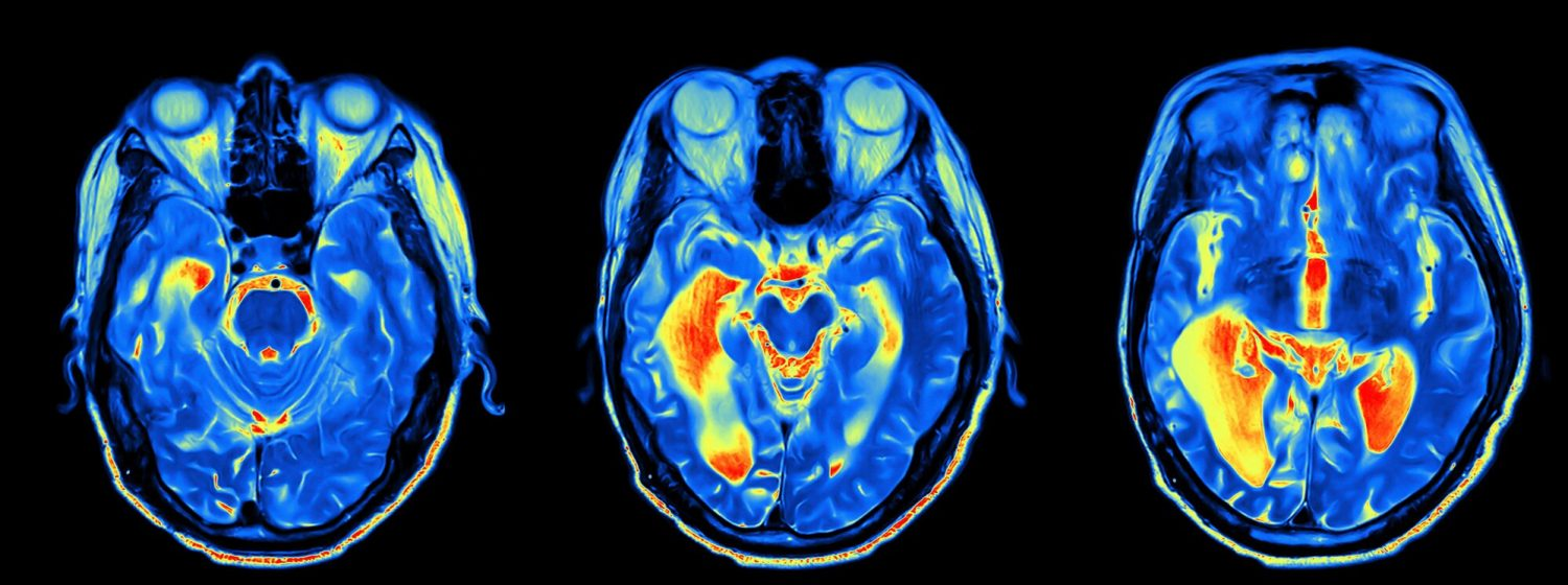 Oxford Brain Diagnostics wins funding from the National Institute for Health Research (NIHR) to test Alzheimer's diagnostic in NHS