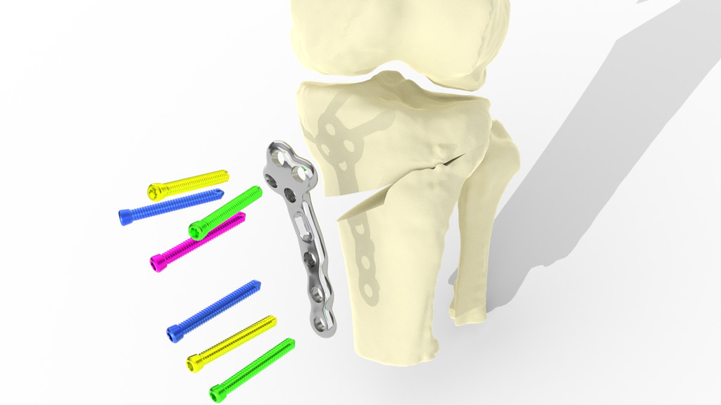 Precision medicine SME secures Knowledge Transfer Partnership to create personalised knee implants